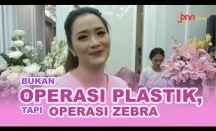 Vega Darwanti Bantah Lakukan Operasi Plastik, Tapi...