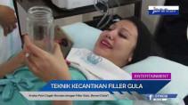 Ariska Putri Cegah Kerutan dengan Filler Gula, Berani Coba? - JPNN.com