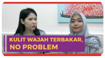 Solusi Ria Ricis Hadapi Kulit Kebakar, Simak... - JPNN.com