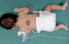 Bayi Memiliki 2 Kemaluan, 1 Normal, 1 di Punggung - JPNN.com