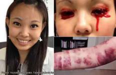 Lihat Penyakit Aneh Dara Cantik Ini Sekujur Tubuh Memar Lalu Menangis Darah - JPNN.com