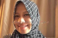 Tega Banget, Dokter Cantik Disiram Air Keras - JPNN.com