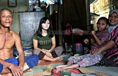 Kisah Orang Tua Rawat Anak Cacat, Tinggal di Kandang Ayam - JPNN.com