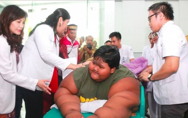 Bocah Terberat di Dunia Asal Karawang itu Ditangani 13 Dokter - JPNN.com