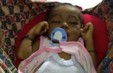 Yuk Ditolong! Bayi Ini Kritis, Tak Punya Uang untuk Operasi - JPNN.com