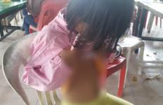 PARAH! Anak yang Disiksa Ibu Angkat Itu Pernah 2 Hari Tak Diberi Makan - JPNN.com