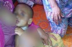 Ayo Dibantu! Bayi Kena Air Panas, Ortu tak Sanggup Bawa ke RS - JPNN.com