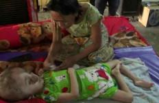 Ayo Kita Bantu Si Kecil Andini... - JPNN.com