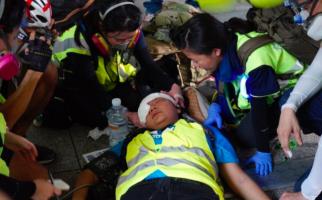 Wartawati asal Indonesia Kena Peluru Saat Liput Demo di Hong Kong - JPNN.com