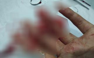 Dua Honorer Jadi Korban Begal Sadis di Jalan - JPNN.com