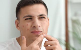 Atasi Bekas Jerawat Membandel dengan Skincare Alami dari Aizen - JPNN.com