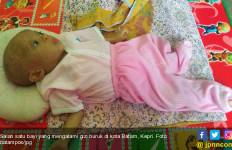 Dua Bayi di Kota Batam Ini Alami Gizi Buruk, Memprihatinkan Sekali... - JPNN.com
