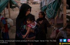 Malanutrisi Cabut Nyawa Bocah Yaman - JPNN.com