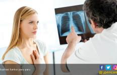 97 Persen Harapan Hidup Pasien Tumor Paru Ditentukan Oleh Deteksi Dini - JPNN.com