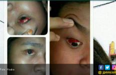 Mata Merah Kena Virus Jerman melalui HP, Bohong! - JPNN.com