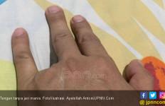 Dikeroyok Pakai Celurit, ABG 13 Tahun Kehilangan Jari Manis - JPNN.com