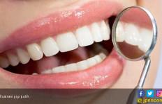 Ingin Gigi Putih Berkilau? Hindari 5 Makanan Ini - JPNN.com