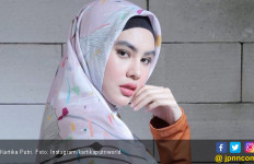 Tubuh Kartika Putri Terkena Cacar Air - JPNN.com