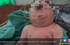 Bayi Terlahir dengan Hanya Mata Satu di Kening Itu Meninggal - JPNN.com