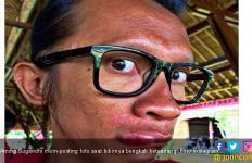 Unggah Foto Bibir Bengkak, Aming Sindir Ratna Sarumpaet? - JPNN.com