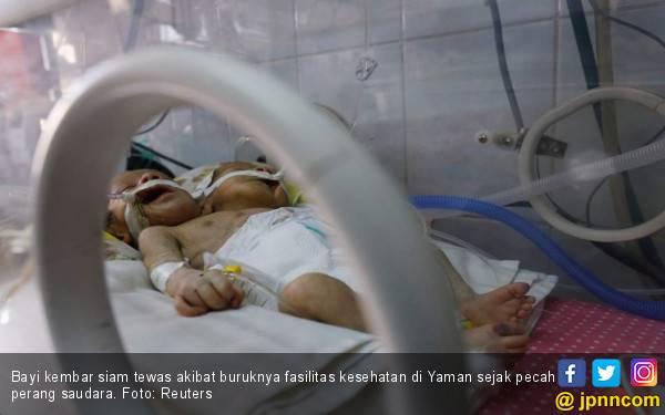 Miris, Bayi Kembar Siam Jadi Korban Perang Yaman - JPNN.com
