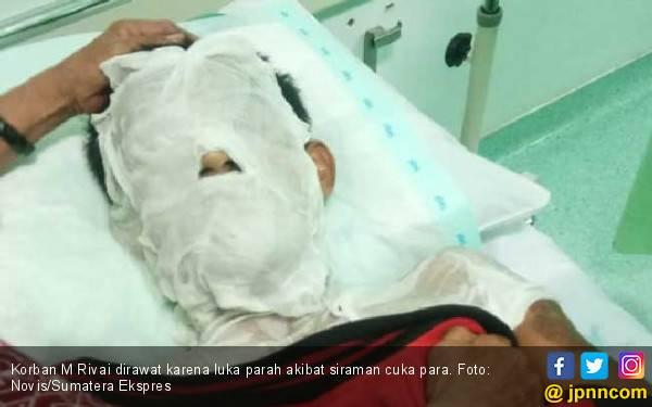 Korban Penyiraman Air Keras Berharap Pelaku Dihukum Seberat-beratnya - JPNN.com