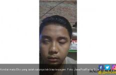 Aneh, Satu Mata Anggota KPPS Ini Tak Bisa Ditutup Meski Sudah Tidur - JPNN.com