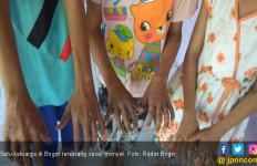 Satu Keluarga di Bogor Diduga Terserang Cacar Monyet - JPNN.com
