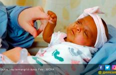 Bayi Prematur Terkecil di Dunia, Bobot Hanya Seberat Apel - JPNN.com