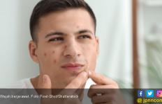 4 Rangkaian Skincare Pagi Yang Tidak Boleh Dilewatkan Untuk Bekas Jerawat - JPNN.com