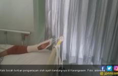 Sudah 12 Tahun Ringan Tangan kepada Keluarga, Terakhir Bikin Tulang Paha Anak Patah - JPNN.com