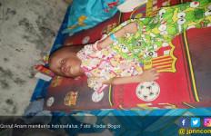 Tolong! Qoirul Anam Menderita Hidrosefalus - JPNN.com