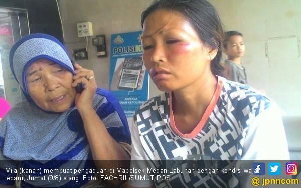 Minta Uang Belanja, Istri Malah Dikasih Suami Bogem Mentah - JPNN.com