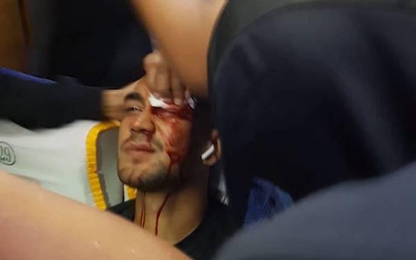 Bus Diserang OTK, Kepala Dua Pemain Persib Berdarah - JPNN.com