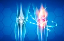 Yuk Cegah Osteoporosis dengan Menghindari Makanan Ini - JPNN.com