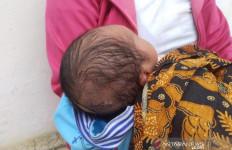 Duh, Kepala Bayi Luka Tersayat Alat Medis di RSUD Sungai Dareh - JPNN.com
