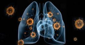 Buah Apa Bisa Memperkuat Imunitas Tubuh di Tengah Wabah Corona?