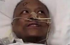 Lihat, Ada 2 Dokter Menghitam Kulitnya Akibat Terjangkiti Corona - JPNN.com