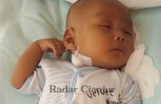 Baru 3 Bulan Melihat Dunia, Bayi di Cianjur Ini Mengidap Penyakit Langka - JPNN.com