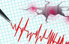 Ada Gempa Susulan Magnitudo 5,5 di Malang, Durasinya 2 Detik - JPNN.com