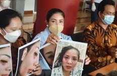 Jadi Korban KDRT, Nindy Ayunda Tunjukkan Foto Lebam di Wajah Hingga Rambut Rontok - JPNN.com